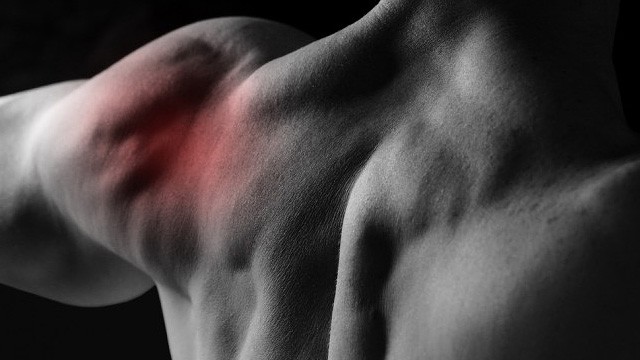 Upala mišića nakon treninga