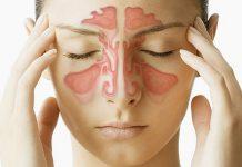 Upala sinusa i prirodno liječenje