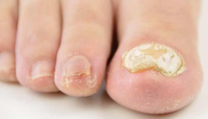 Zadebljani nokti na nogama