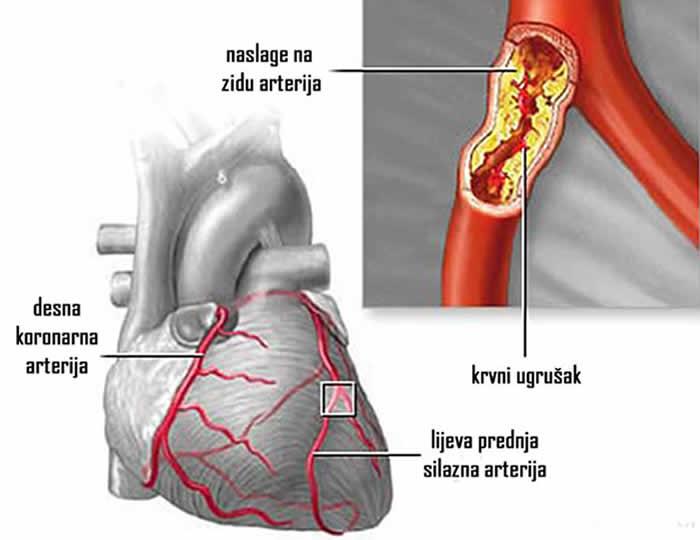 zakrčenje koronarnih arterija