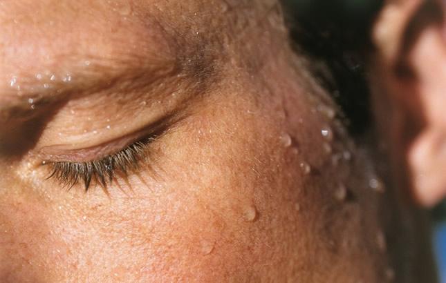 prekomjerno znojenje